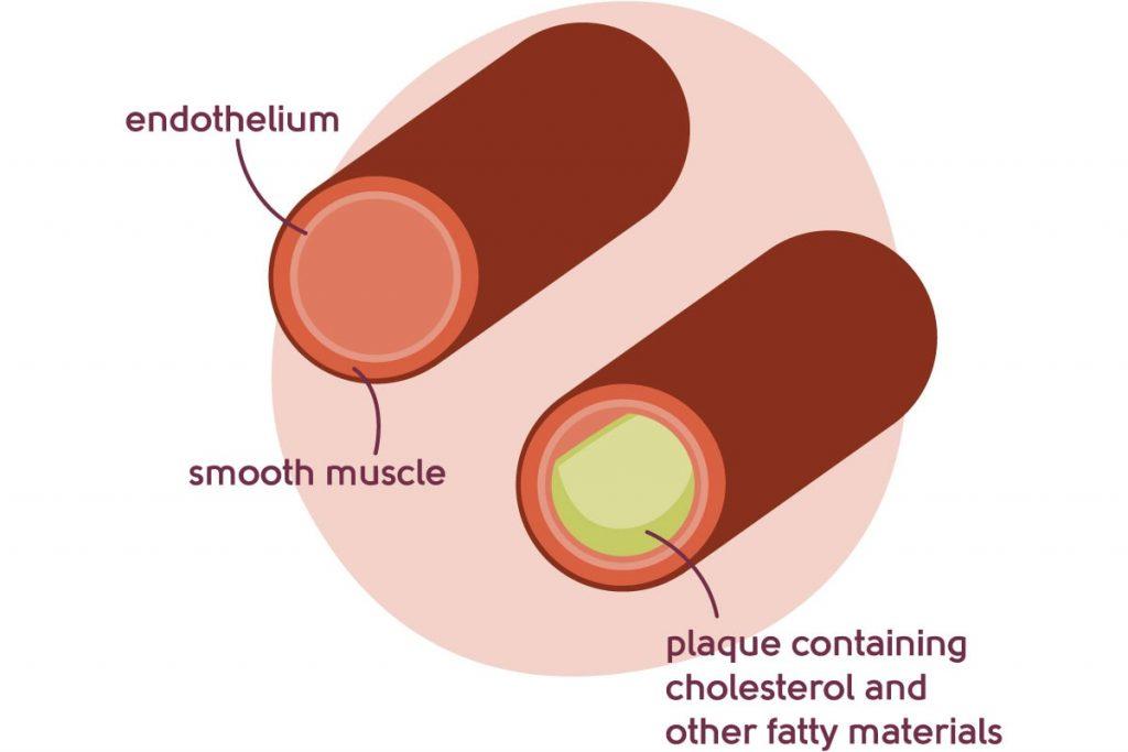 Arteries diagram