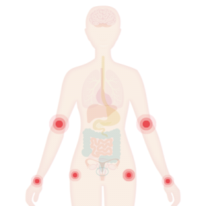 Image of the body with joints highlighted