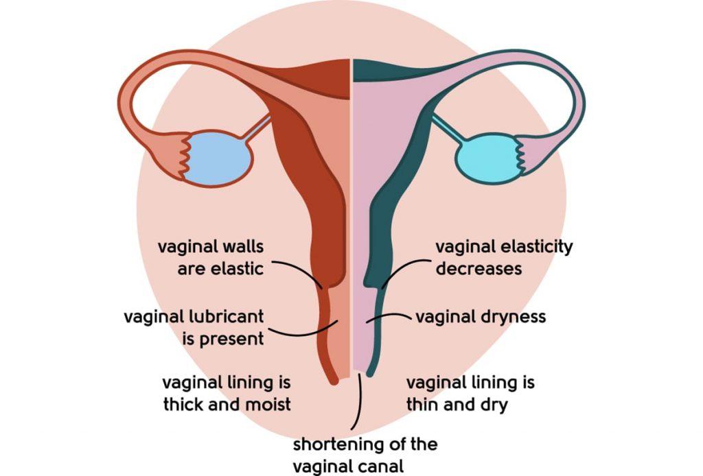 Healthy vagina vs urogenital atrophy